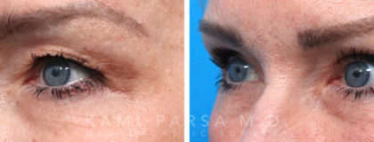 Upper eyelid surgery Before/After Photos   Kami Parsa MD Los Angeles, Beverly Hills
