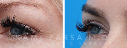 Upper eyelid surgery Before/After Photos | Kami Parsa MD Los Angeles, Beverly Hills